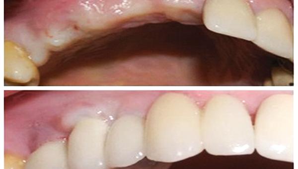 Clínica dental Pilar Garrido lanza oferta en implantes dentales