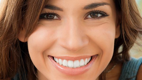 Carillas de porcelana como nueva moda de estética dental