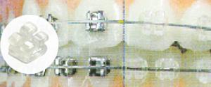 brackets-de-zafiro-estetica-dental