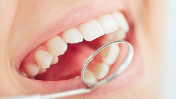 Causas de la inflamación de las encías