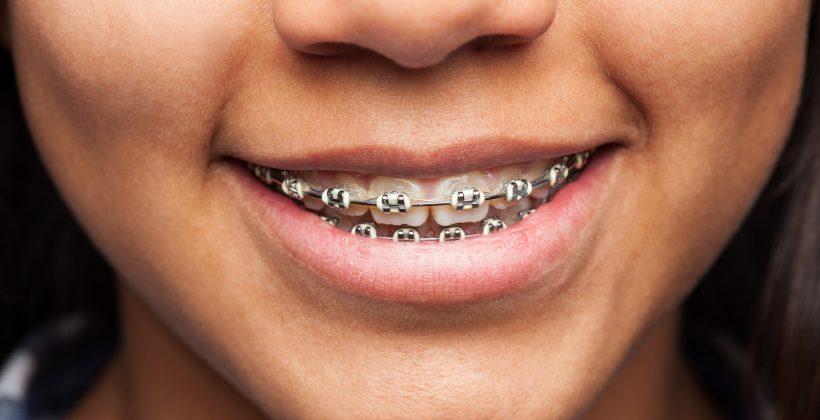 Qué tipo de ortodoncia elegir