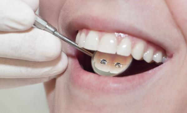 Ortodoncia Lingual. Clínica Dental Pilar Garrido