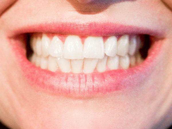 Bruxismo. Clínica Dental Pilar Garrido