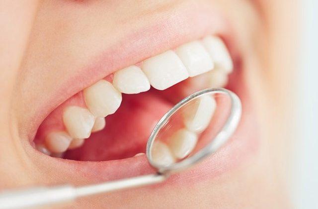 Relación entre periodontitis y la colocación de implantes dentales