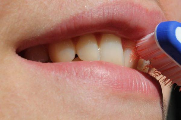 Gingivitis. Clínica Dental Pilar Garrido