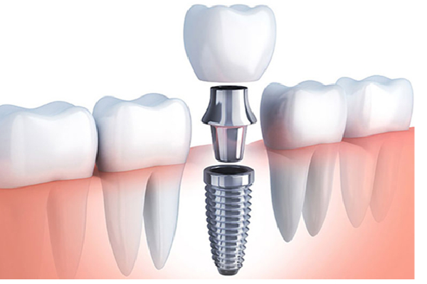 Implantes dentales con carga inmediata