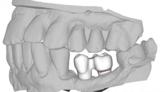 Las clínicas dentales de Madrid podrán implementar el CAD/CAM