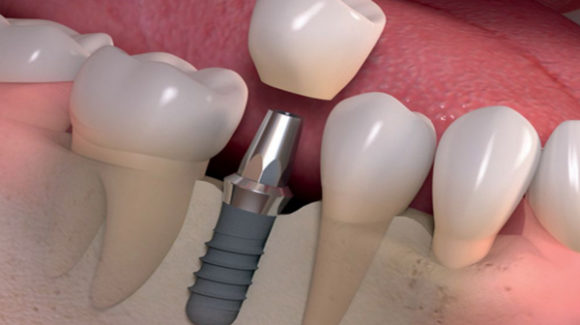 Los tipos de implantes dentales y materiales usados
