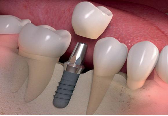 Los tipos de implantes dentales y materiales usados