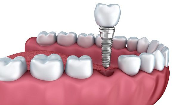 ¿Duelen los implantes dentales?
