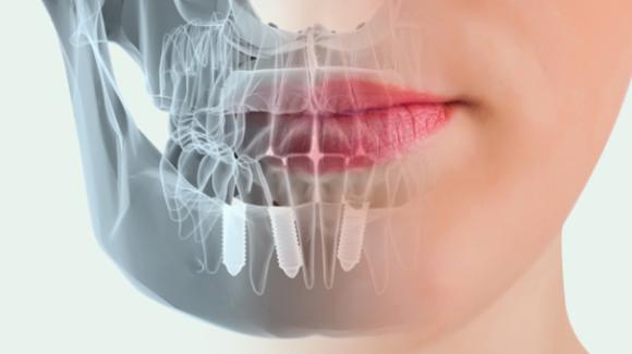 ¿Cuáles son los beneficios más destacados de los implantes dentales?