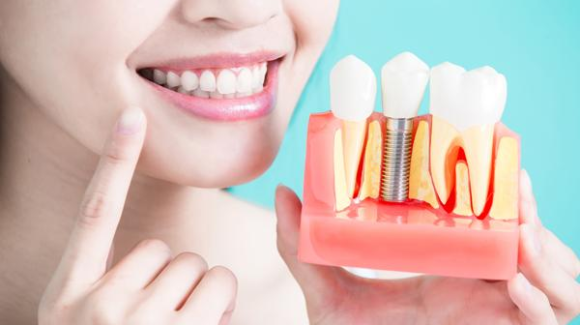 Desmontamos 10 mitos sobre los implantes dentales
