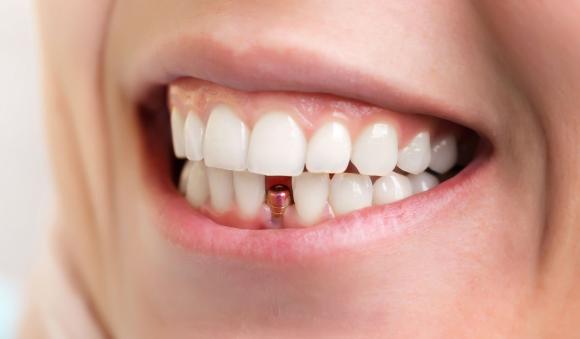Todo lo que tienes que saber antes de realizarte un implante dental