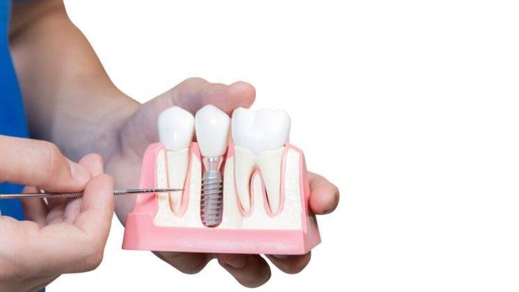 ¿Cuáles son las partes de un implante dental?