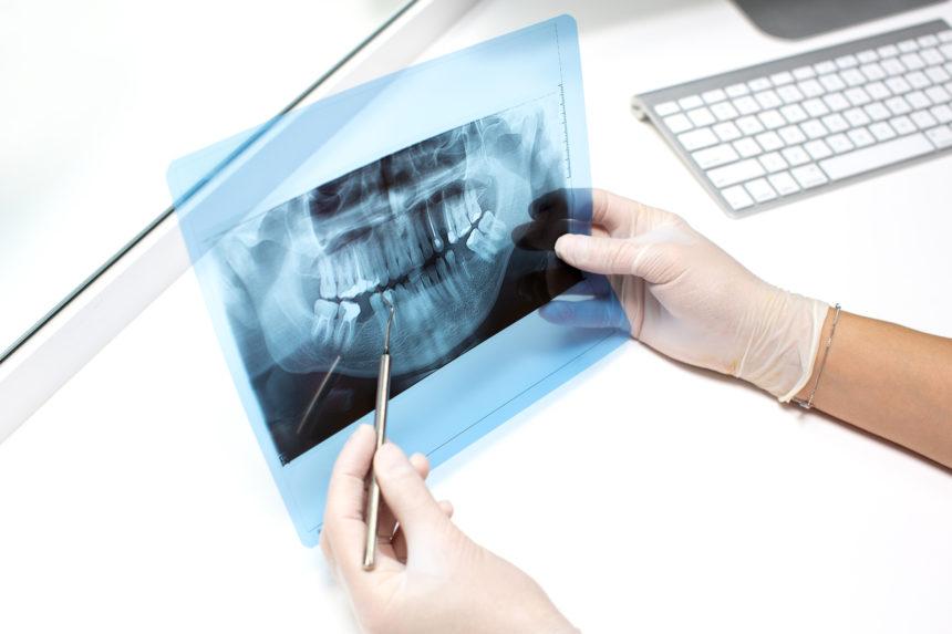 La Inteligencia Artificial en la Odontología